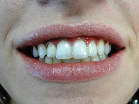 after-clear braces