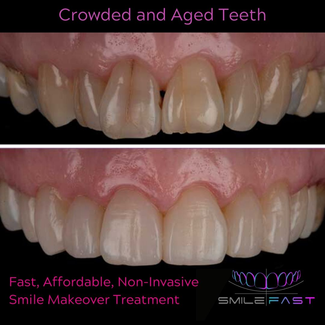 Crowded and aged teeth