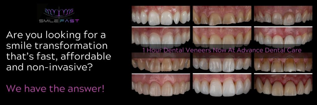 Fast, Affordable 60 Minute Veneers