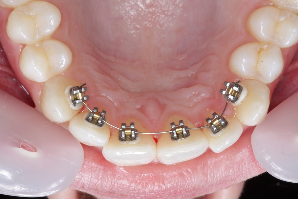 Behind teeth braces