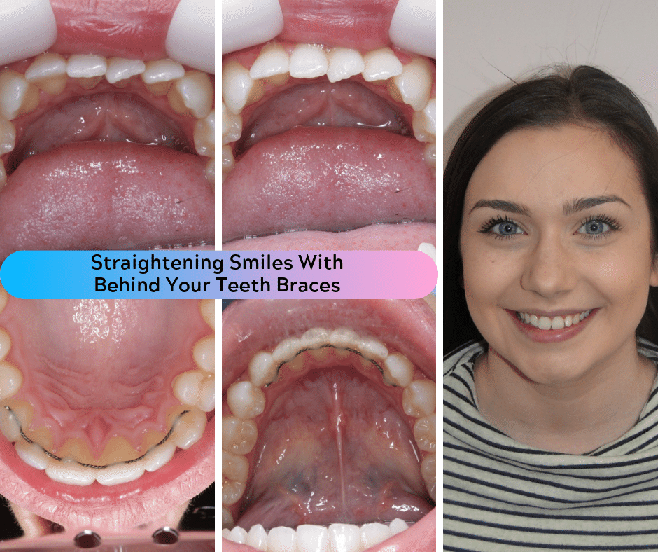 Straightening Smiles With Behind Your Teeth Braces (3)